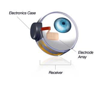 FDA-Retina-Implant1